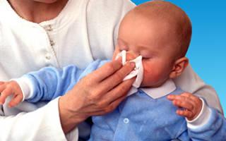 Лечение насморка у грудного ребенка по комаровскому по месяцам