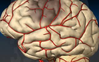 Сужение сосудов головного мозга у ребенка лечение симптомы причины