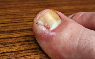 Панариций лечение в домашних условиях на ноге у ребенка