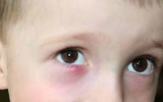 Гной из глаз у ребенка 2 года лечение