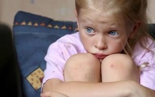 Головная боль у ребенка 12 лет причины и лечение