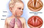 Воспаление голосовых связок у ребенка симптомы и лечение