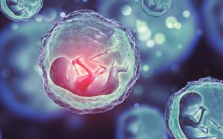 Признаки многоплодной беременности на ранних сроках