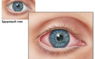 Конъюнктивит у ребенка красные глаза причины и способы лечения