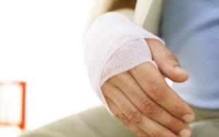 Перелом лучевых костей руки со смещением у ребенка лечение