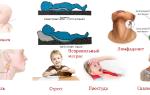 Болит шея при повороте головы у ребенка лечение
