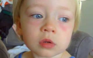 Отек глаз у ребенка после сна причины и лечение