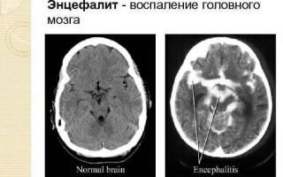 Нервный тик глаза причины и лечение у ребенка 7 лет