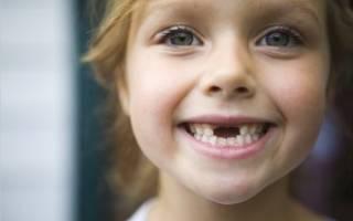 Почему у детей выпадают молочные зубы