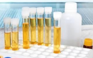 Лейкоциты в моче у ребенка и белок лечение