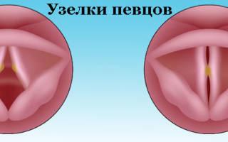 Узелки на голосовых связках у ребенка лечение народными средствами