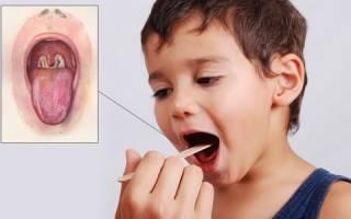 Прививки полиомиелит и акдс график