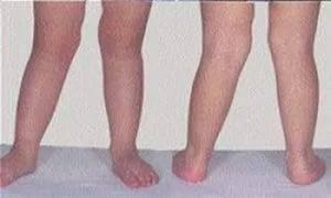 Одна нога короче другой на 1 см у ребенка лечение