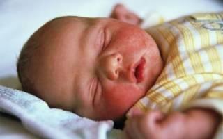 Золотистый стафилококк у ребенка 2 года в кале лечение