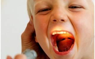 Сильно болит горло у ребенка 3 года лечение
