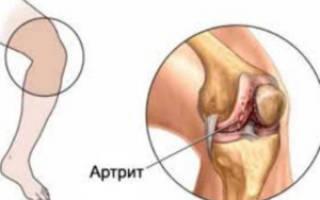 Артрит у ребенка 2 года симптомы и лечение
