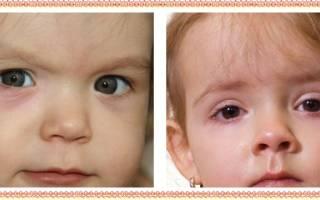 Отеки под глазами причины и лечение у ребенка
