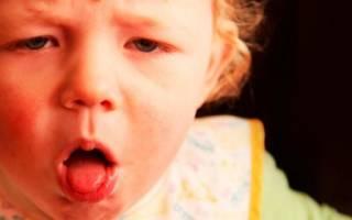 Аллергический кашель у ребенка симптомы и лечение комаровский