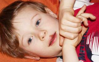 Герпес на губе у ребенка 3 лет лечение