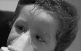Ларингит у ребенка симптомы и лечение в домашних