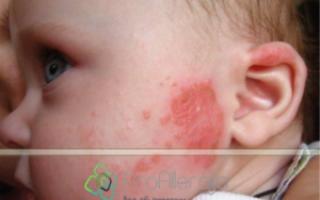Как проявляется аллергия у младенца на кошек?