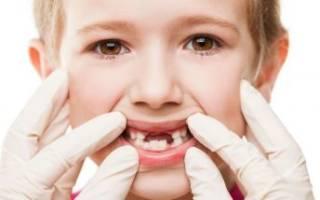 Воспаление десны у ребенка лечение в домашних условиях