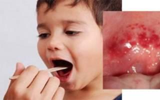 Красная сыпь в горле у ребенка и температура лечение