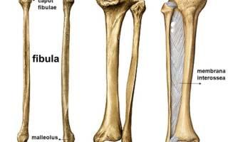 Перелом большой берцовой кости у ребенка 3 лет лечение