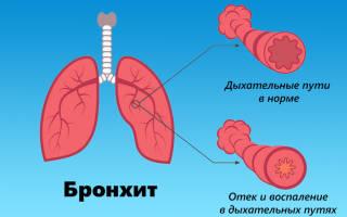 Лечение насморка и кашля у ребенка народными средствами быстро