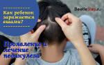 Что делать если у ребенка вши на голове лечение?