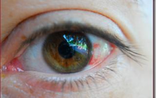 Кровоизлияние в глаз причины и лечение у ребенка