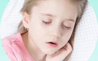 Ребенок 3 года храпит во сне соплей нет лечение