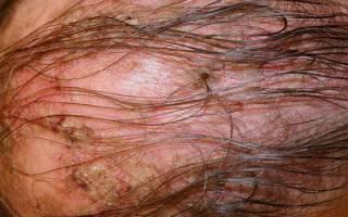 Коросты на голове у ребенка причины и лечение 12
