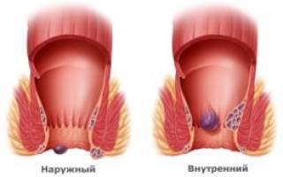 Геморрой у ребенка 5 лет лечение кровь и шишка торчит