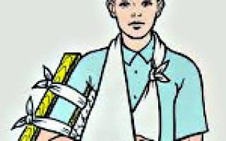 Перелом плечевой кости у ребенка без смещения лечение