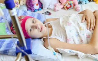 Лейкоз у ребенка и его последствия