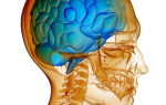 Внутричерепное давление у ребенка 3 года симптомы и лечение