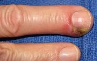 Панариций пальца на руке у ребенка лечение в домашних