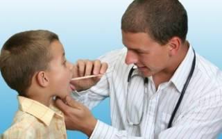 Грибок в горле у ребенка лечение симптомы и лечение