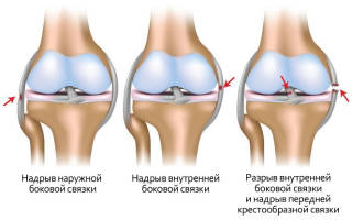 Растяжение связок коленного сустава у ребенка лечение в домашних условиях