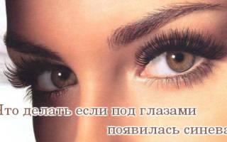 Причины появления синевы под глазами