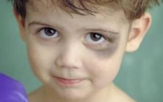 У ребенка синяк под глазом от удара лечение