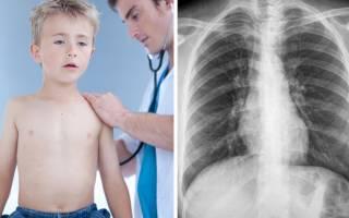 Бронхит у ребенка 4 года лечение и симптомы