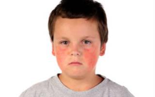 Причины и признаки заболевания свинкой детей свинкой