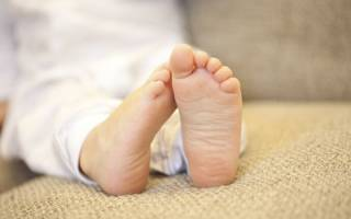 Шпора на пятке у ребенка симптомы и лечение