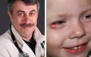 Ячмень на глазу лечение у ребенка 9 лет