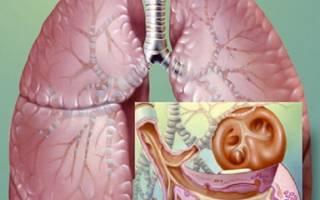 Бронхит симптомы и лечение у ребенка 6 лет