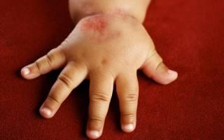 Дерматит у ребенка симптомы и лечение народными средствами
