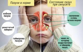 Гайморит у ребенка 8 лет симптомы и лечение