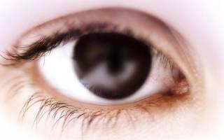 Глаукома у ребенка причины симптомы лечение и профилактика
